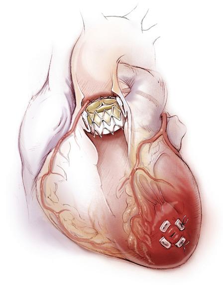 сердце3.jpg